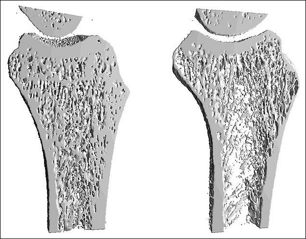 an analysis of the characteristics and treatment of osteoporosis a skeleton disease